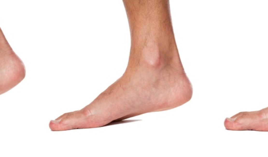 Flat Feet – All You Need to Know