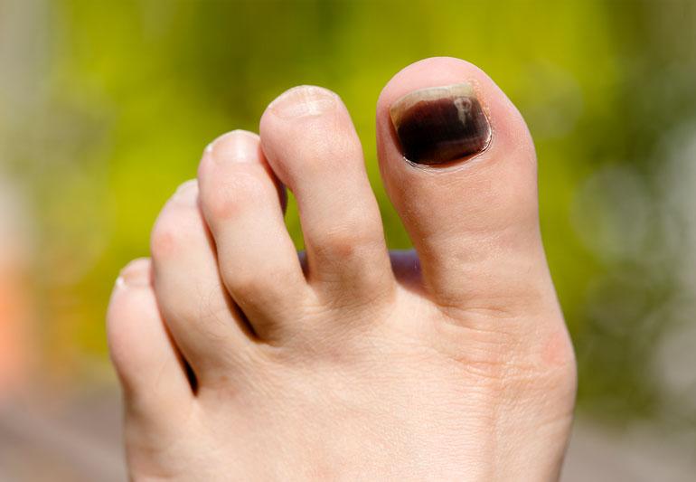 Runners toenail